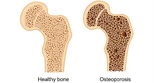 Exercise for Bone Health Part 1: What You Need to Know